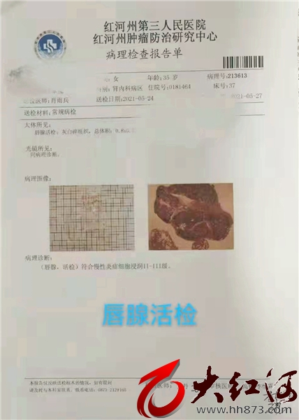 红河州第三医院成功诊治一例少见IgG4相关疾病 国内仅为个案报道