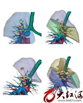 红河州肿瘤医院开展精准肺段切除术  让早期肺癌手术更微创